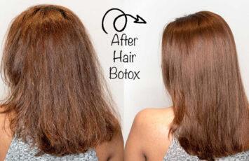 بوتاکس مو چیست